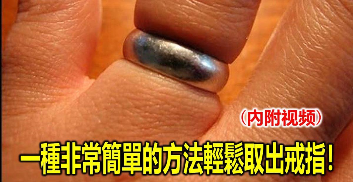 一種非常簡單的方法輕鬆取出戒指!(內附视频)